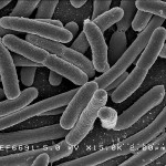 "Vale developing ""copper eating"" bacteria"